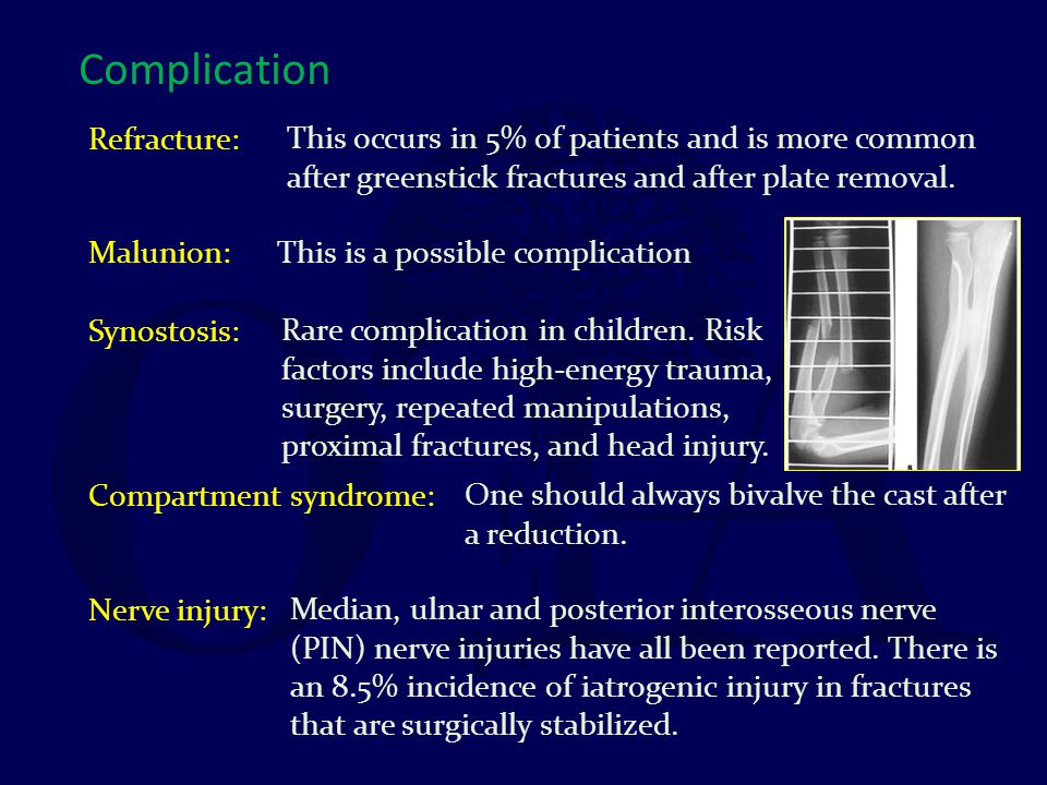 Complication Refracture: