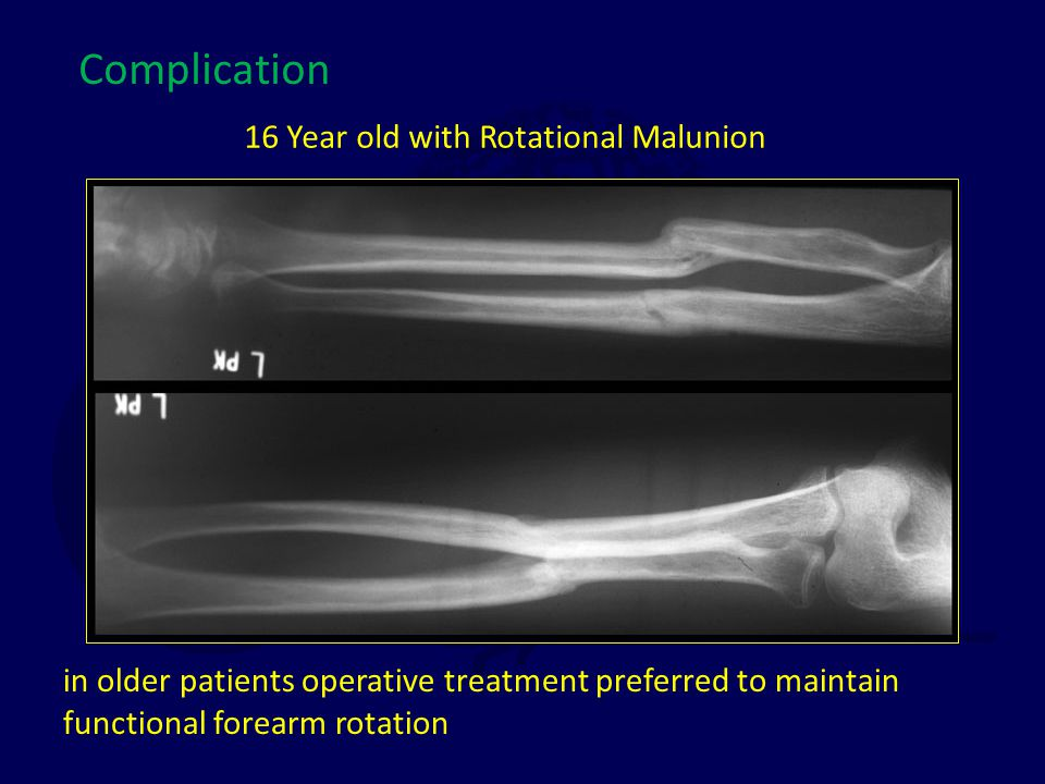 16 Year old with Rotational Malunion