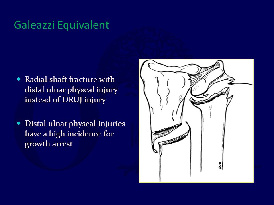Galeazzi Equivalent Radial shaft fracture with distal ulnar physeal injury instead of DRUJ injury.