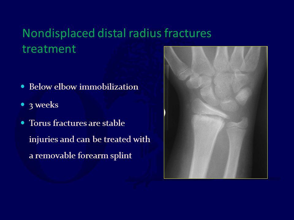 Nondisplaced distal radius fractures treatment