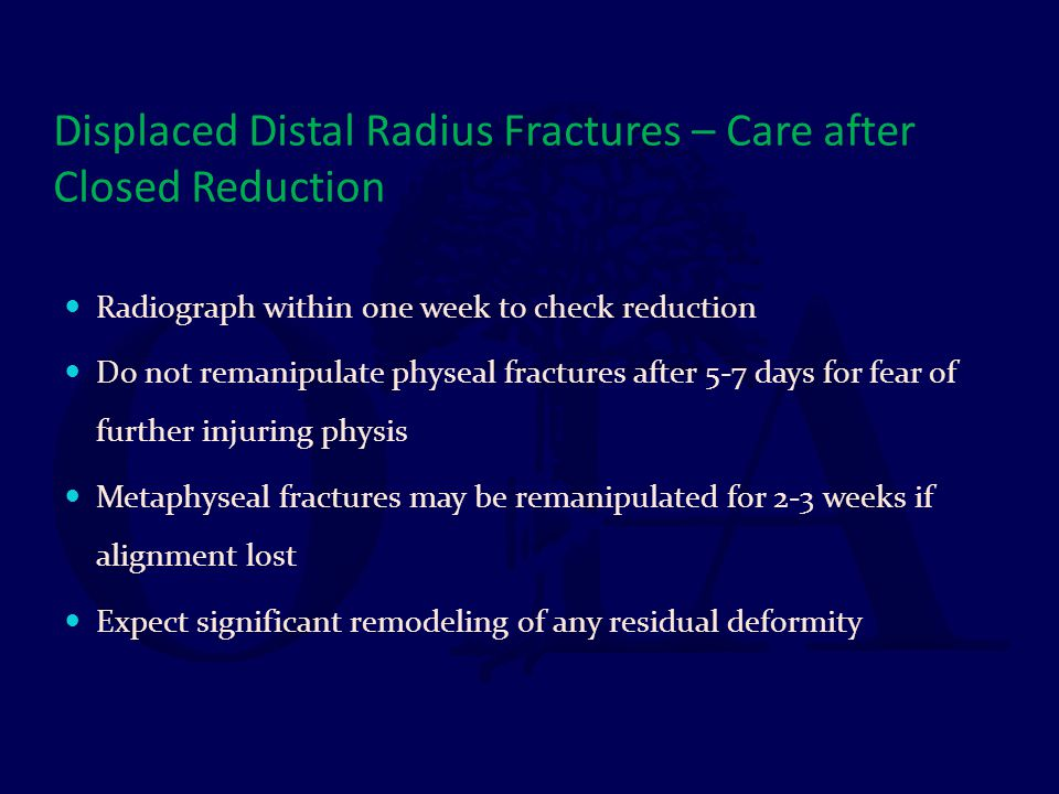 Displaced Distal Radius Fractures – Care after Closed Reduction