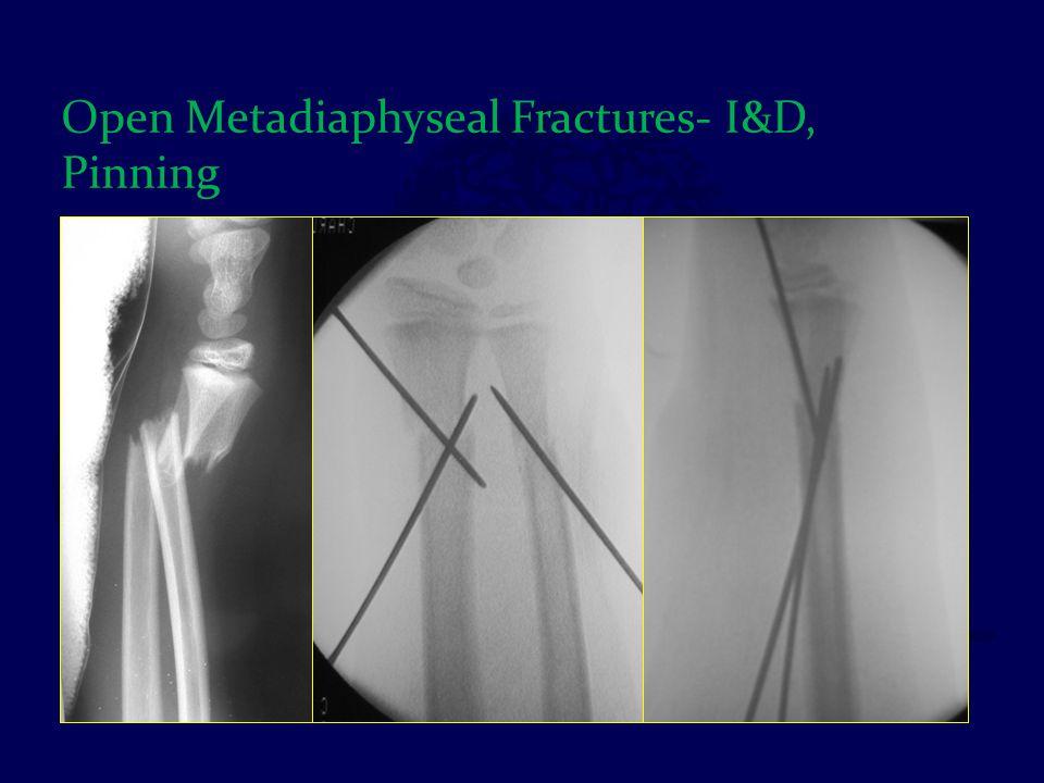 Open Metadiaphyseal Fractures- I&D, Pinning