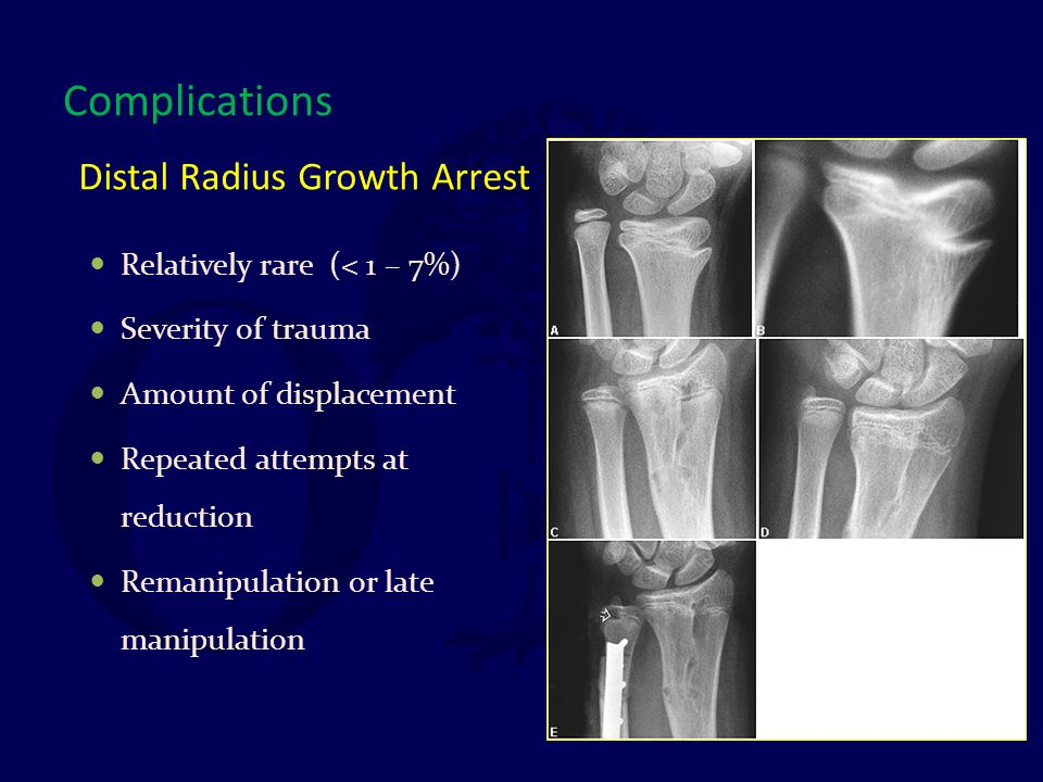 Distal Radius Growth Arrest