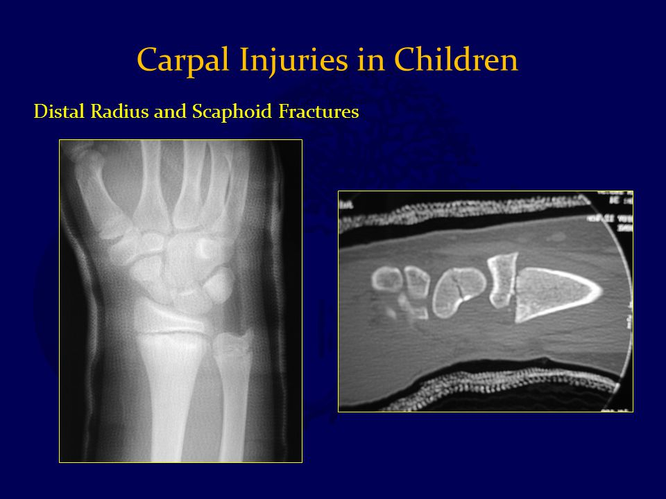 Distal Radius and Scaphoid Fractures