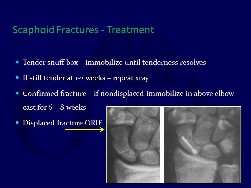 Scaphoid Fractures - Treatment