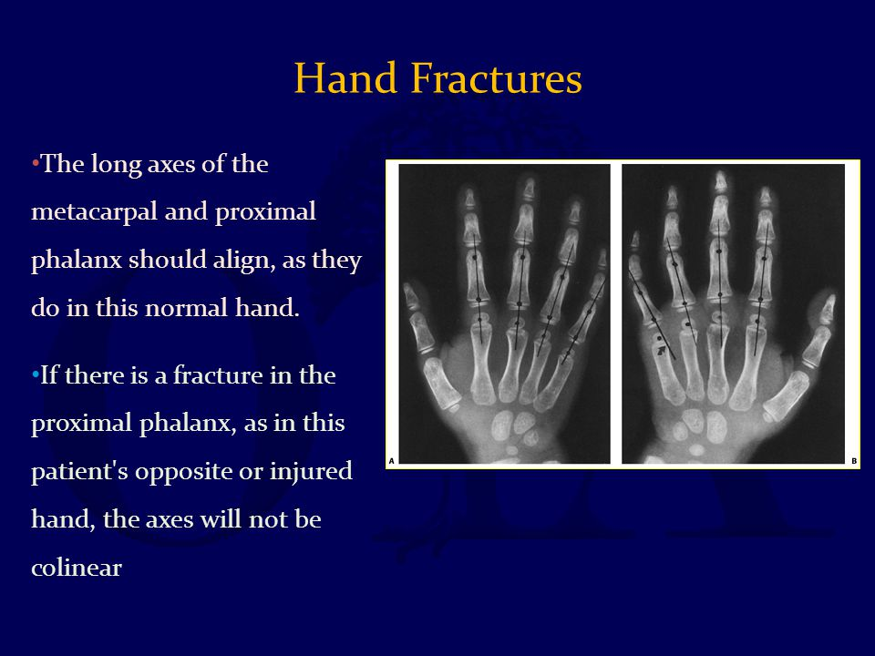 Hand Fractures The long axes of the metacarpal and proximal phalanx should align, as they do in this normal hand.