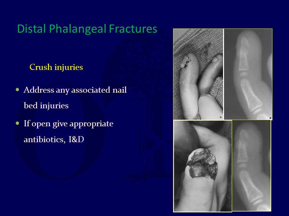 Distal Phalangeal Fractures