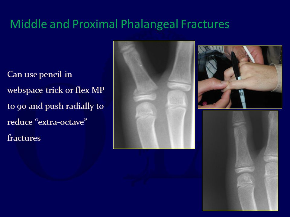 Middle and Proximal Phalangeal Fractures