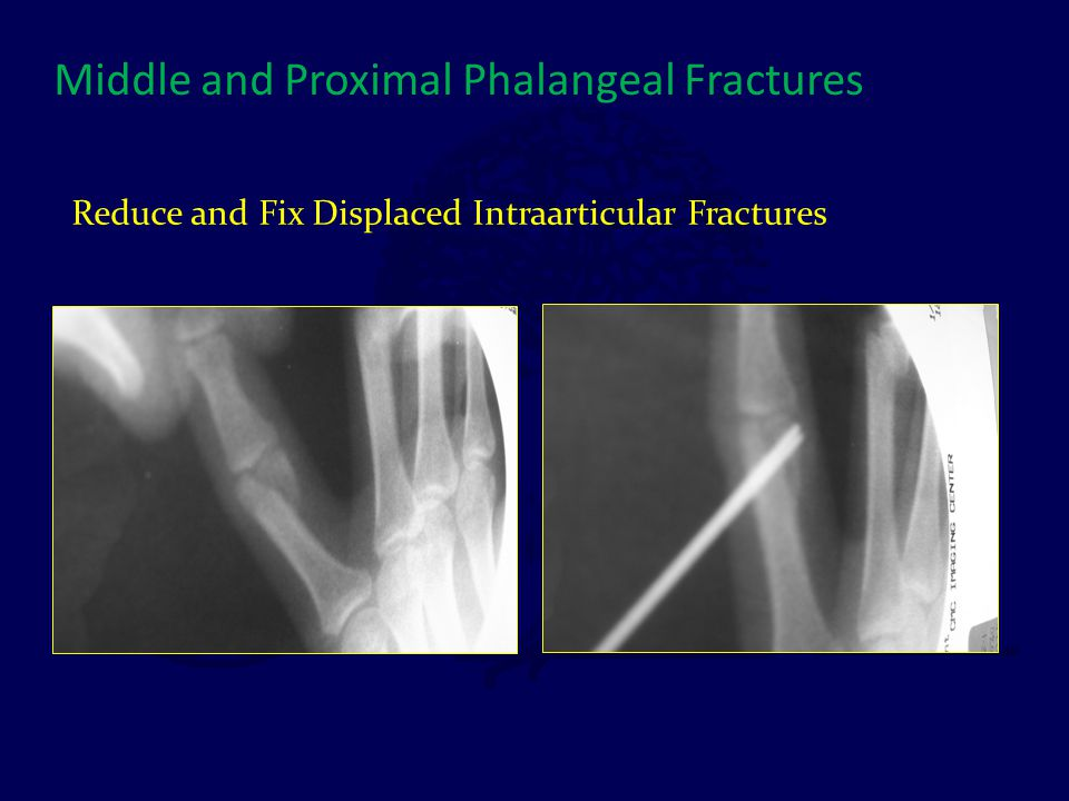 Reduce and Fix Displaced Intraarticular Fractures
