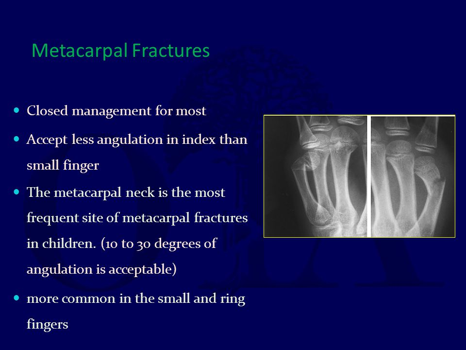 Metacarpal Fractures Closed management for most