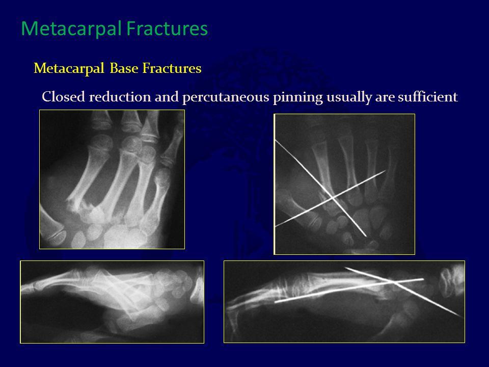 Metacarpal Fractures Metacarpal Base Fractures