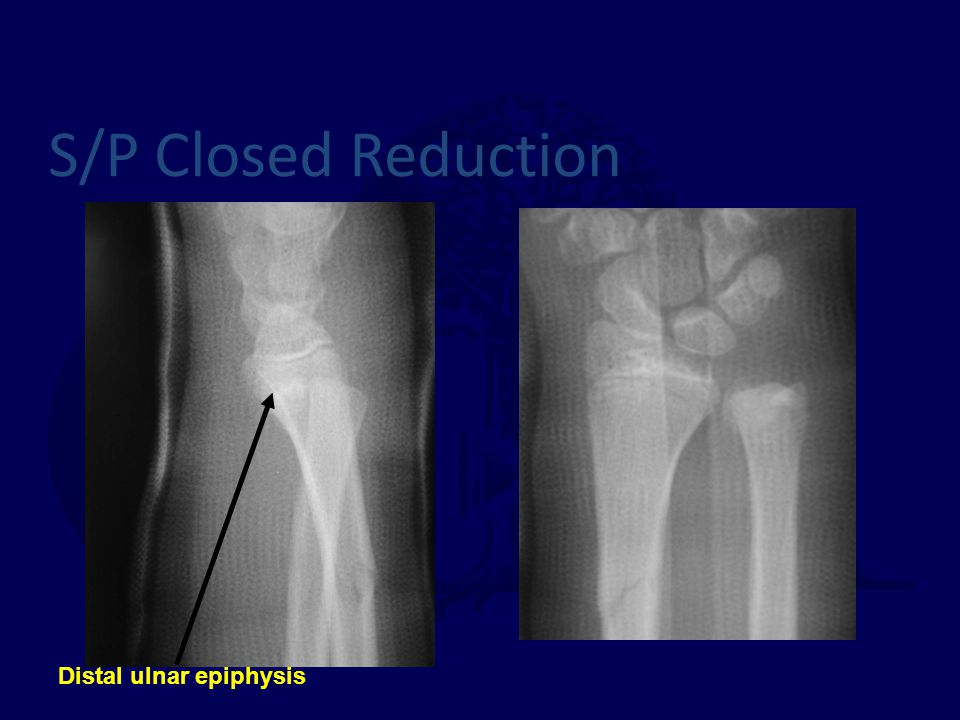 S/P Closed Reduction Distal ulnar epiphysis