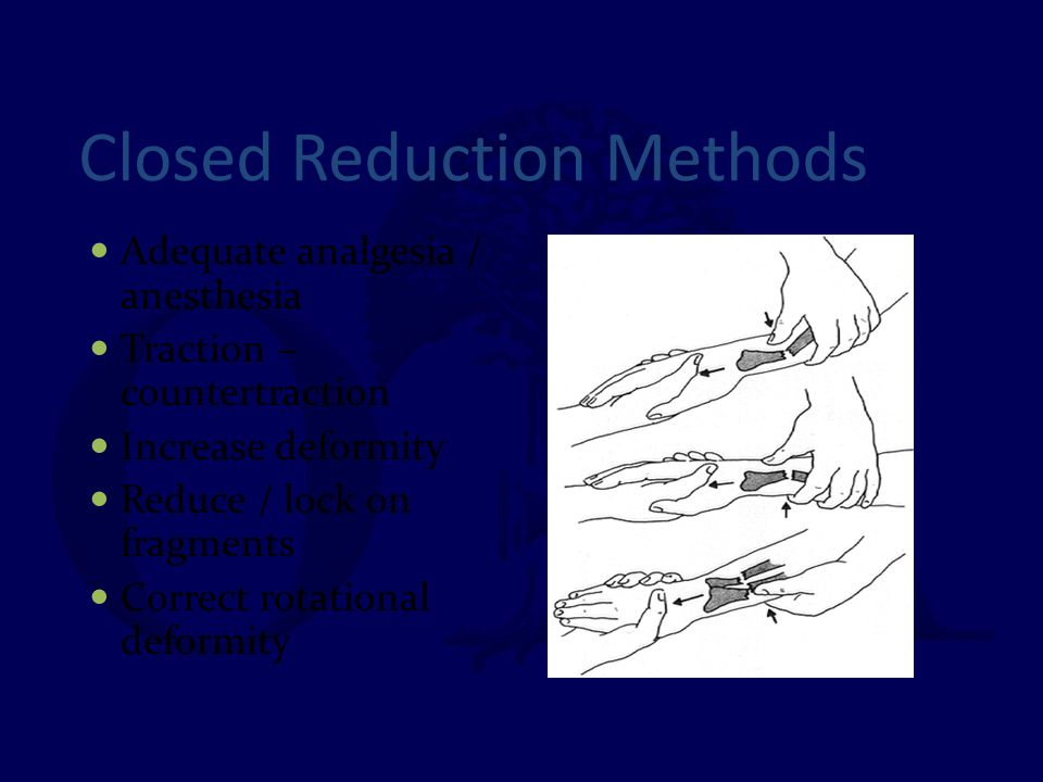 Closed Reduction Methods