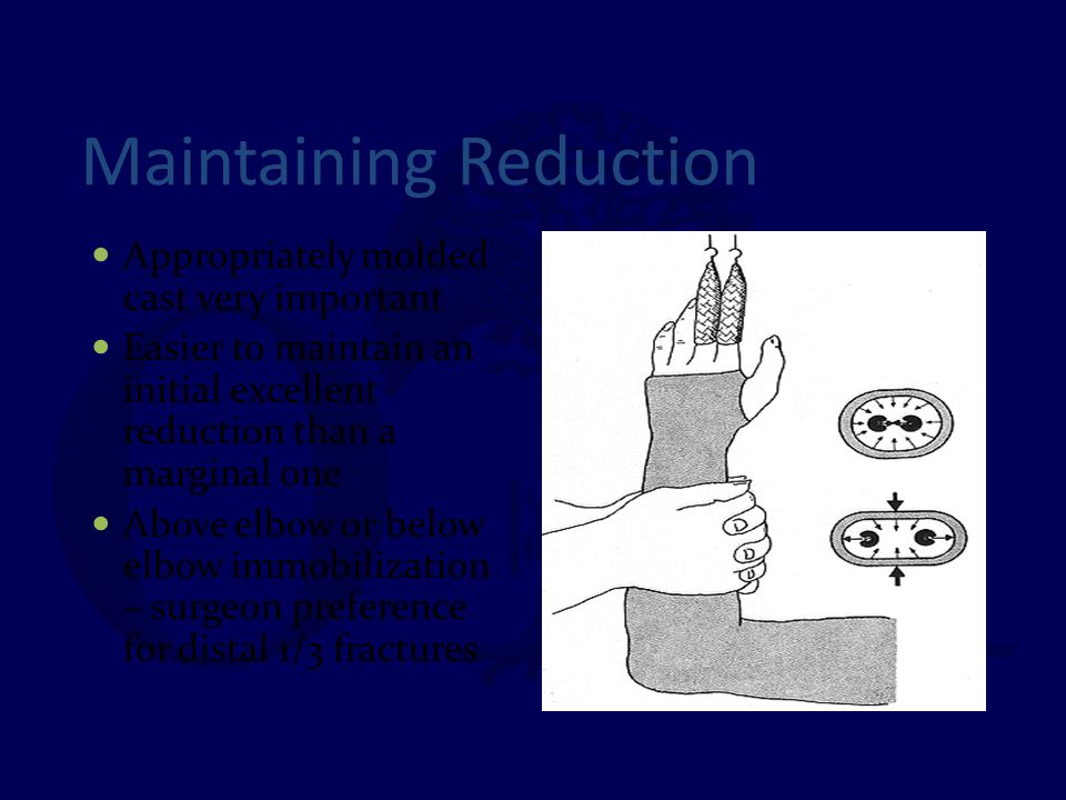 Maintaining Reduction