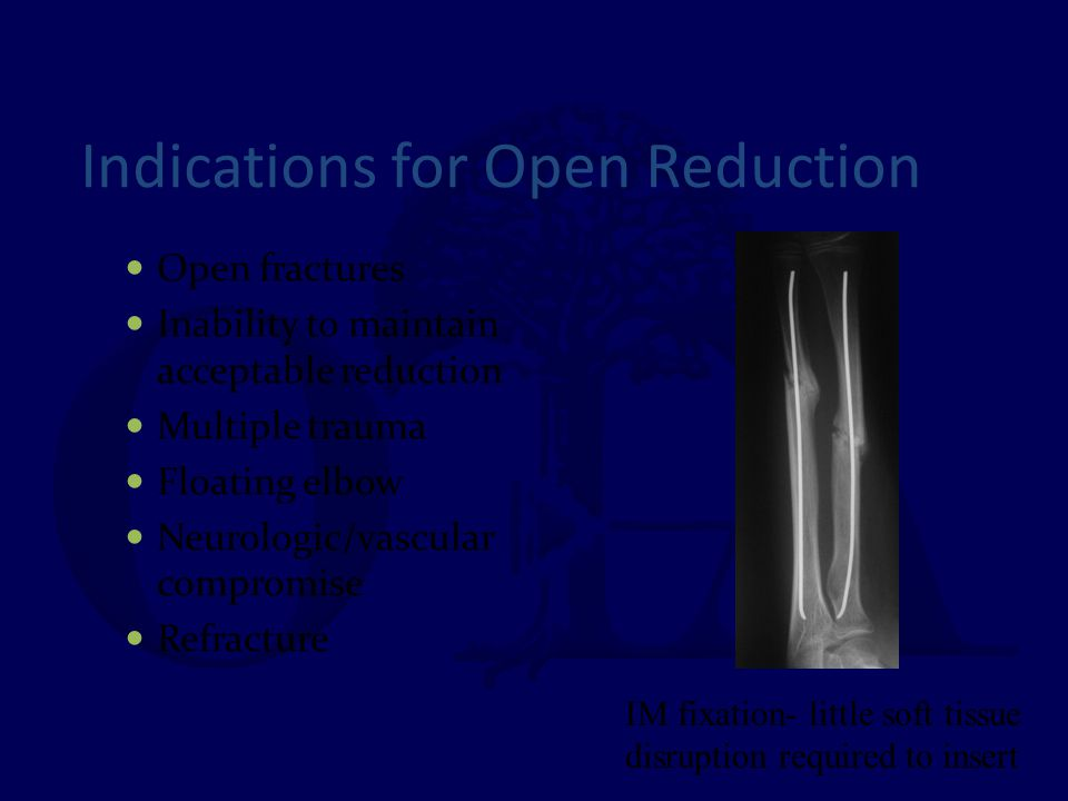 Indications for Open Reduction