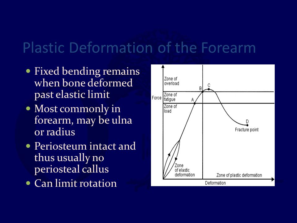 Plastic Deformation of the Forearm