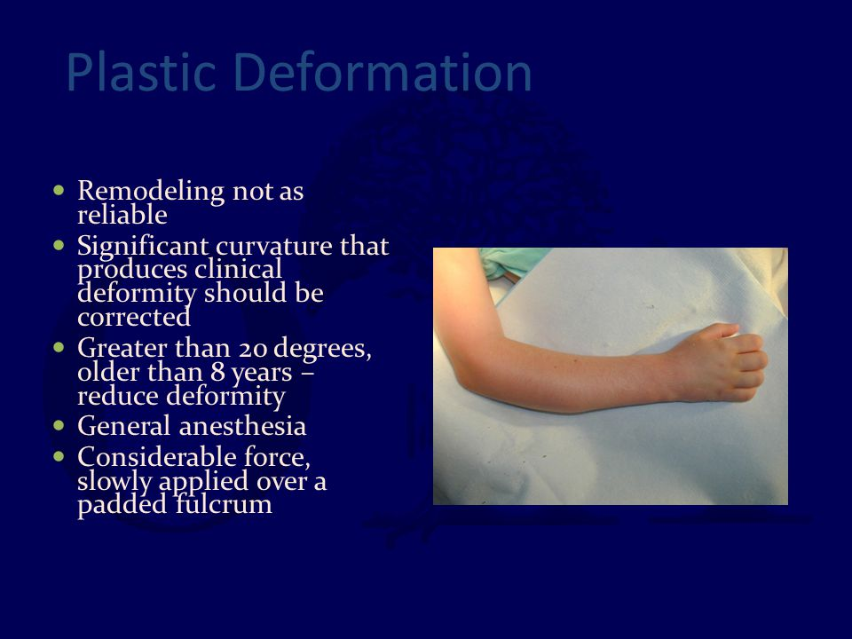 Plastic Deformation Remodeling not as reliable