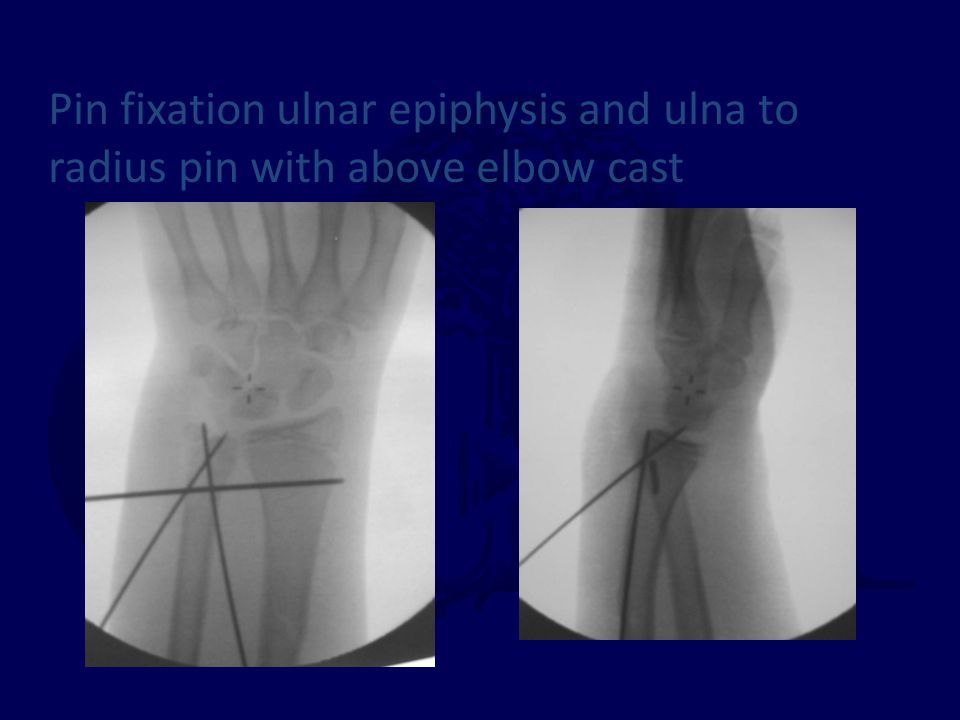 Pin fixation ulnar epiphysis and ulna to radius pin with above elbow cast
