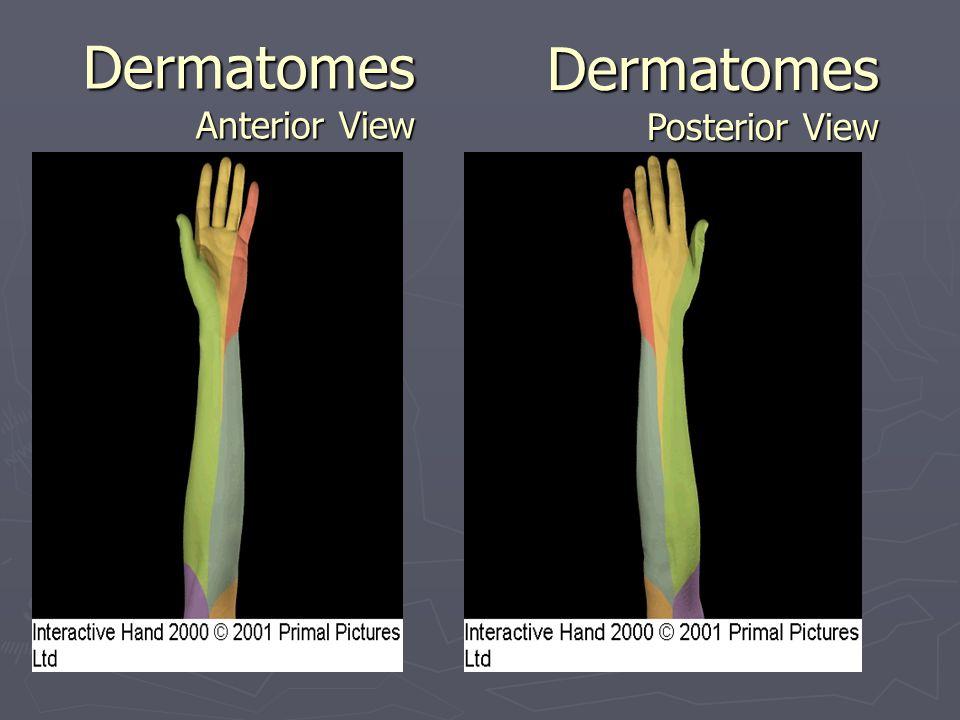 Dermatomes Anterior View
