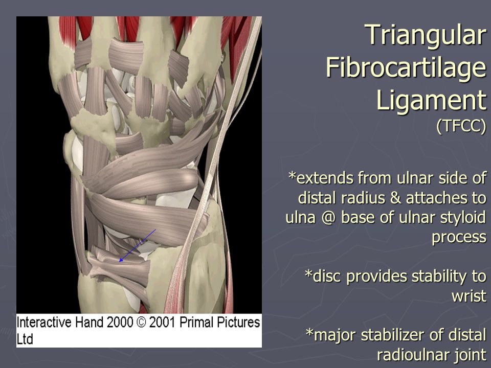 Triangular Fibrocartilage Ligament (TFCC)