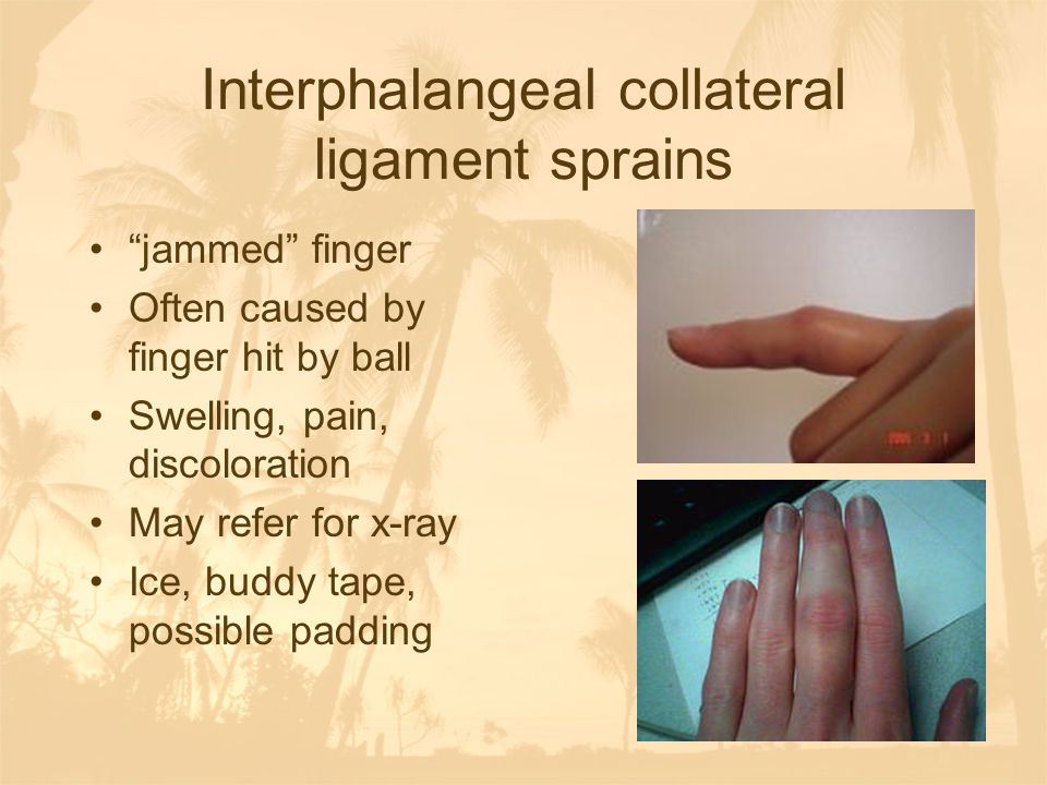 Interphalangeal collateral ligament sprains