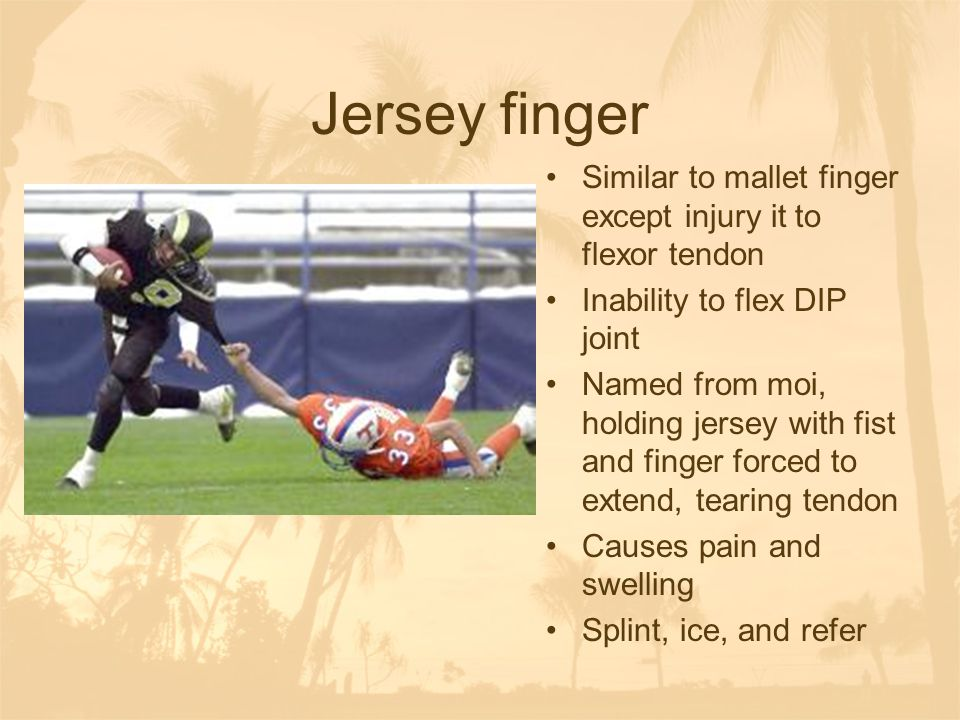 Jersey finger Similar to mallet finger except injury it to flexor tendon. Inability to flex DIP joint.