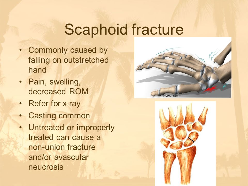 Scaphoid fracture Commonly caused by falling on outstretched hand