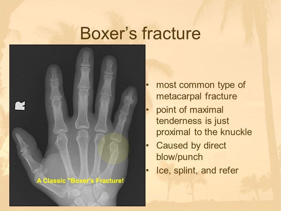 Boxer's fracture most common type of metacarpal fracture