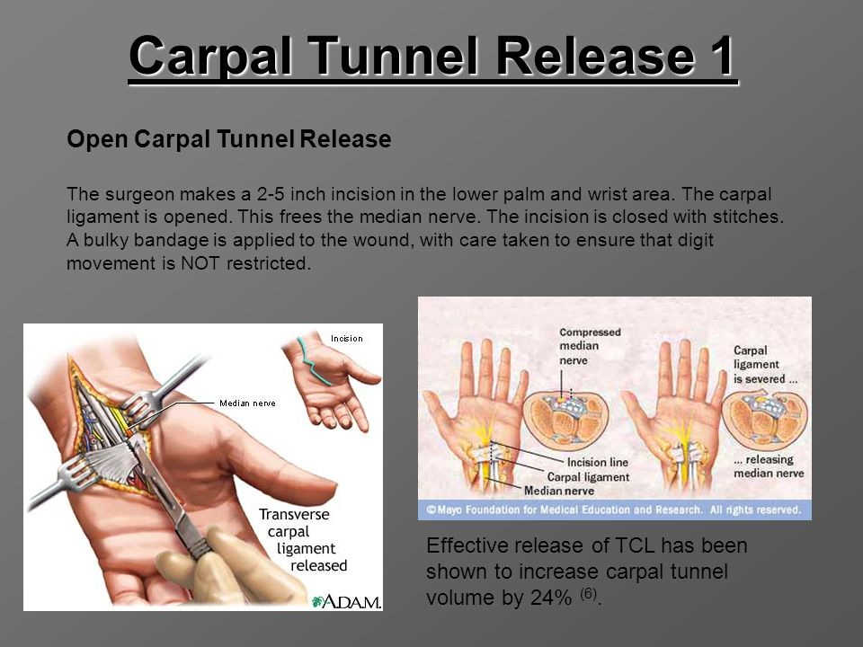 Carpal Tunnel Release 1 Open Carpal Tunnel Release