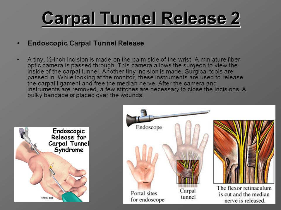 Carpal Tunnel Release 2 Endoscopic Carpal Tunnel Release