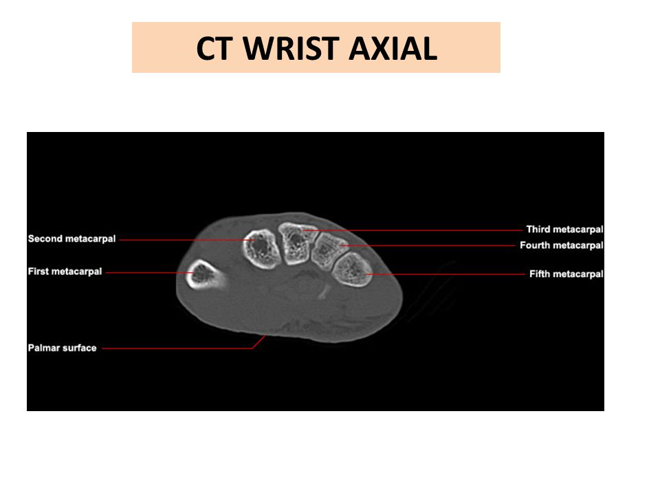 CT WRIST AXIAL