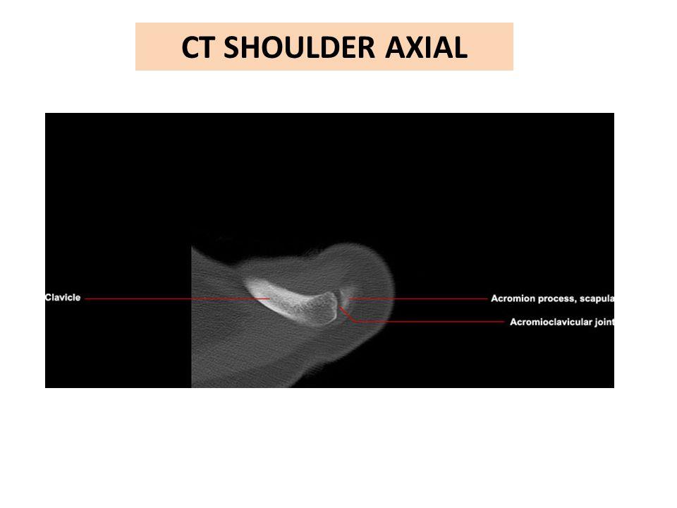 CT SHOULDER AXIAL