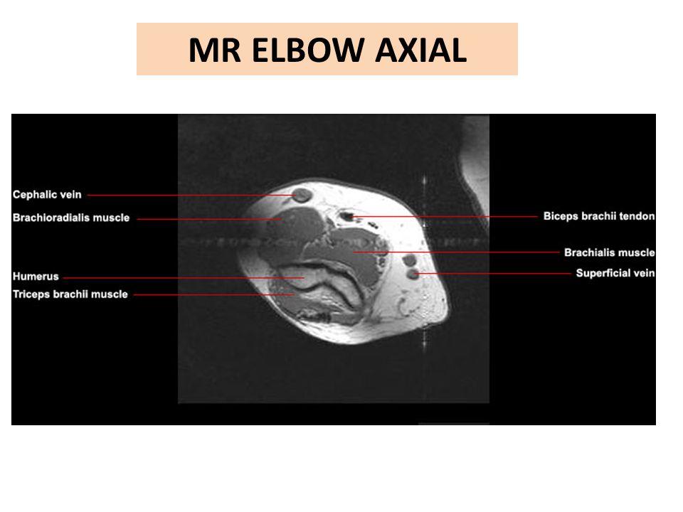 MR ELBOW AXIAL