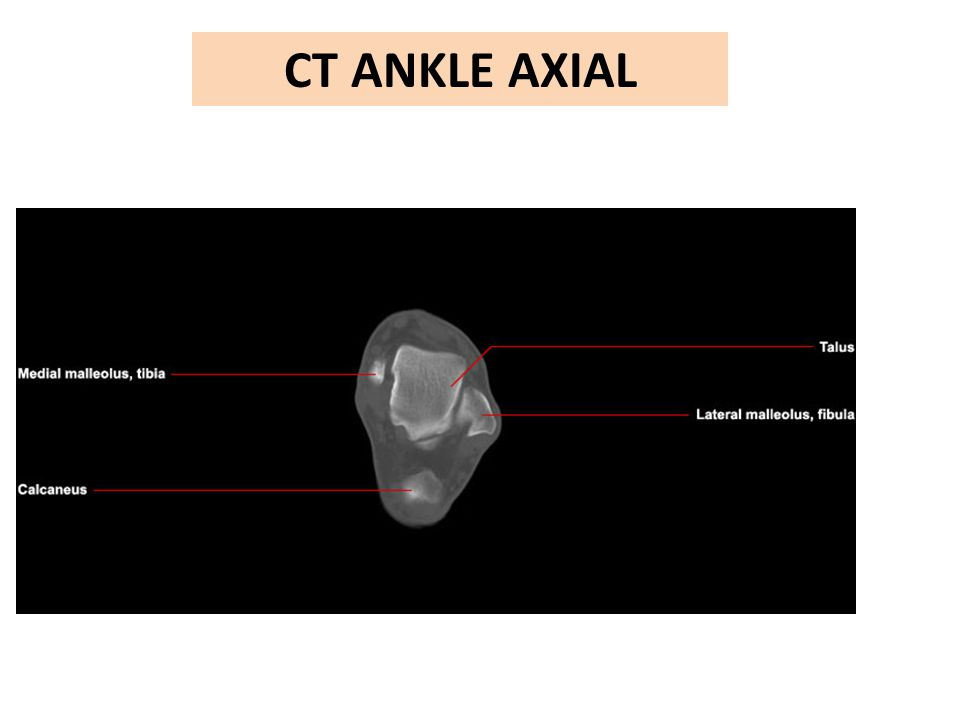 CT ANKLE AXIAL