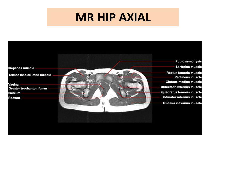 MR HIP AXIAL