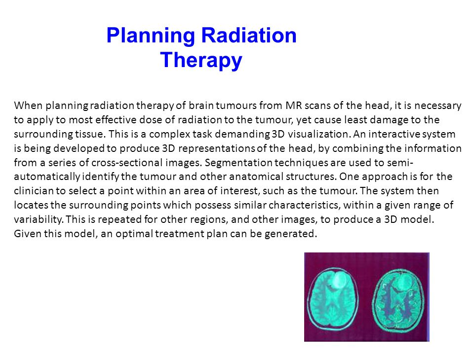 Planning Radiation Therapy