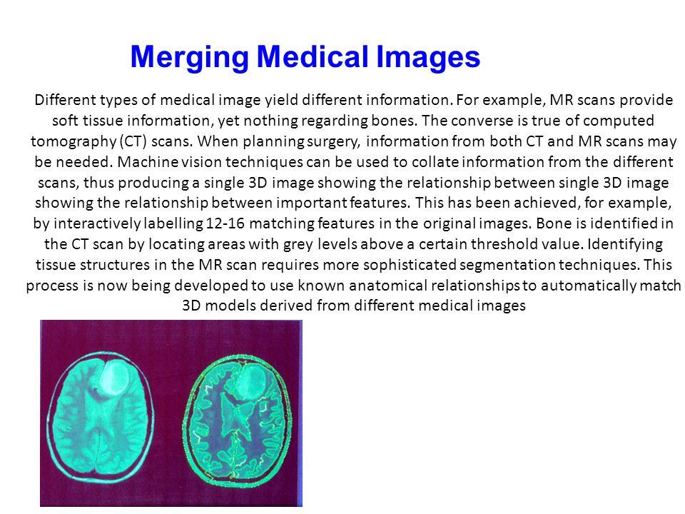 Merging Medical Images