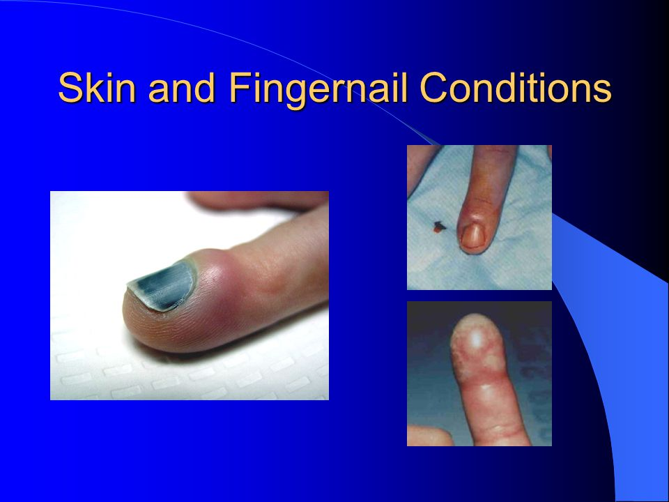 Skin and Fingernail Conditions