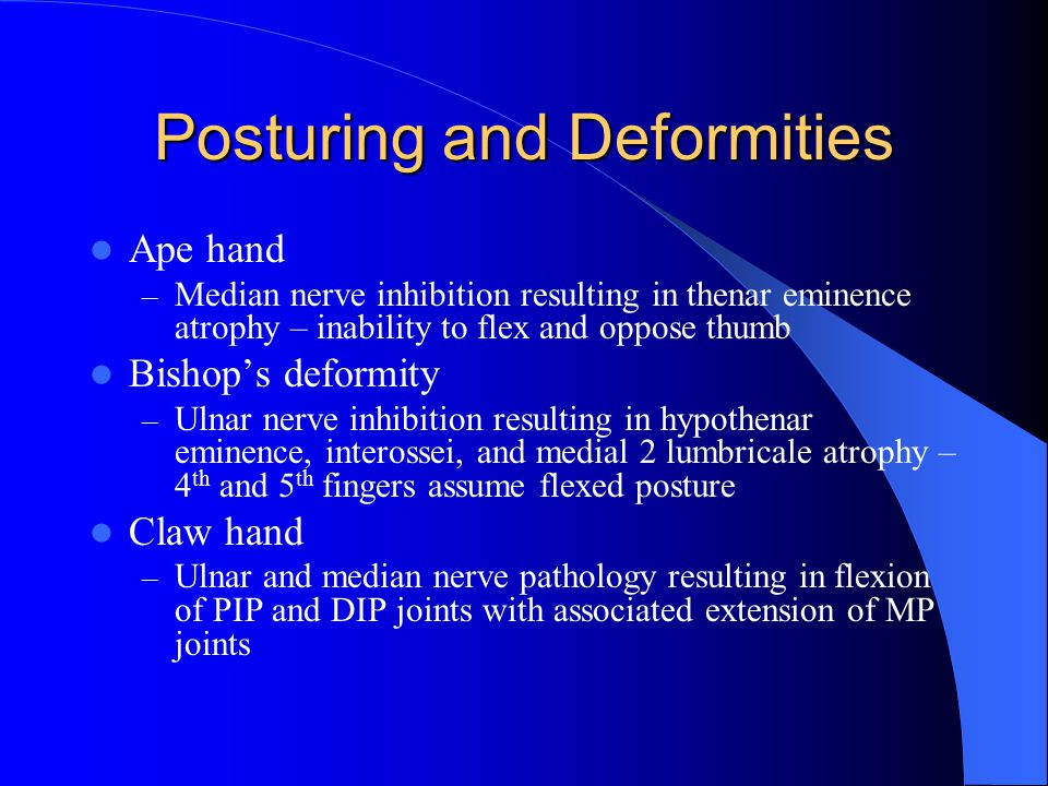 Posturing and Deformities