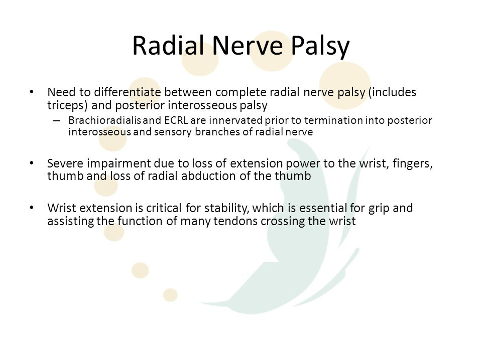 Radial Nerve Palsy Need to differentiate between complete radial nerve palsy (includes triceps) and posterior interosseous palsy.