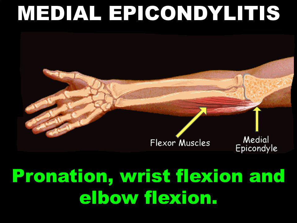Pronation, wrist flexion and elbow flexion.