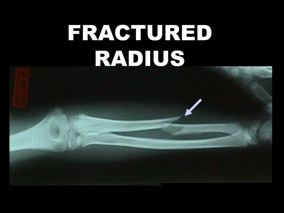FRACTURED RADIUS