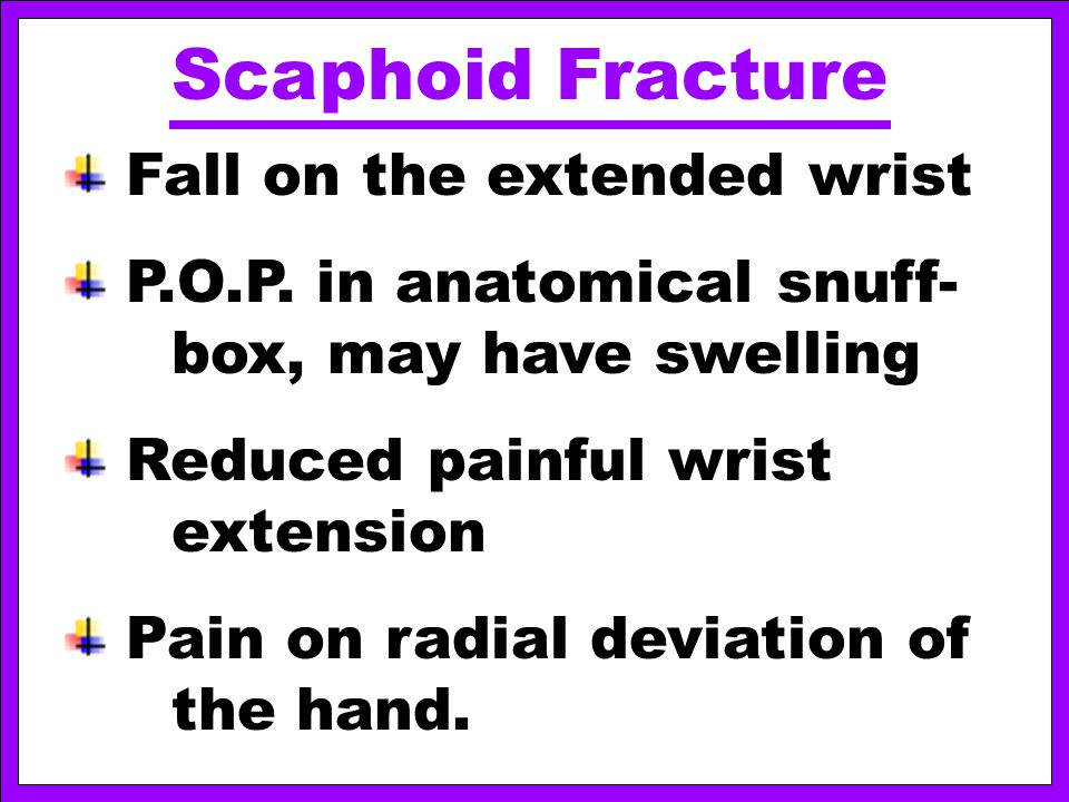 Scaphoid Fracture Fall on the extended wrist