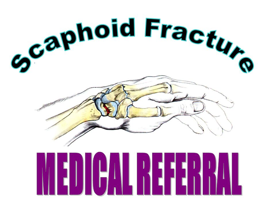 Scaphoid Fracture MEDICAL REFERRAL