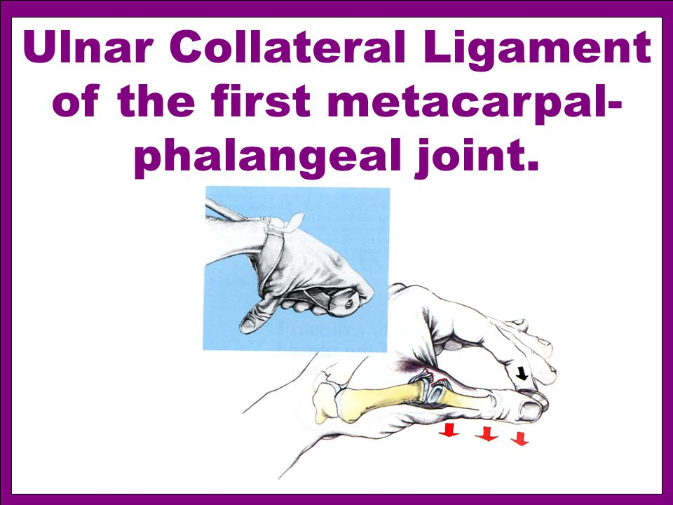 Ulnar Collateral Ligament of the first metacarpal- phalangeal joint.