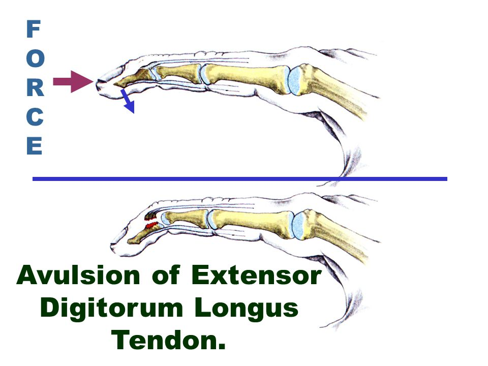 Avulsion of Extensor Digitorum Longus Tendon.