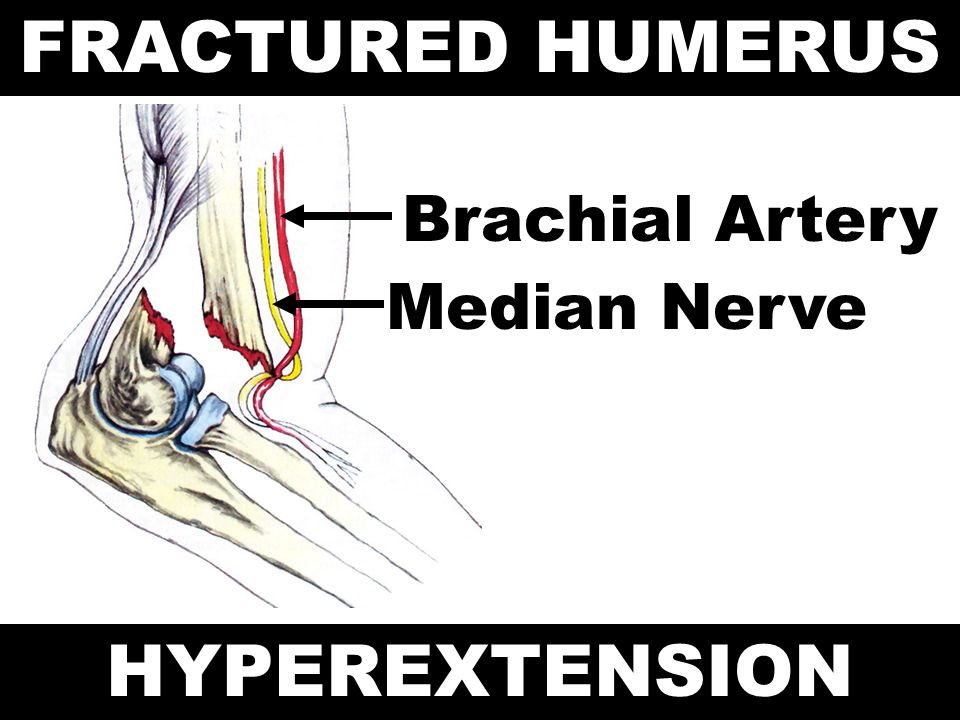 FRACTURED HUMERUS HYPEREXTENSION
