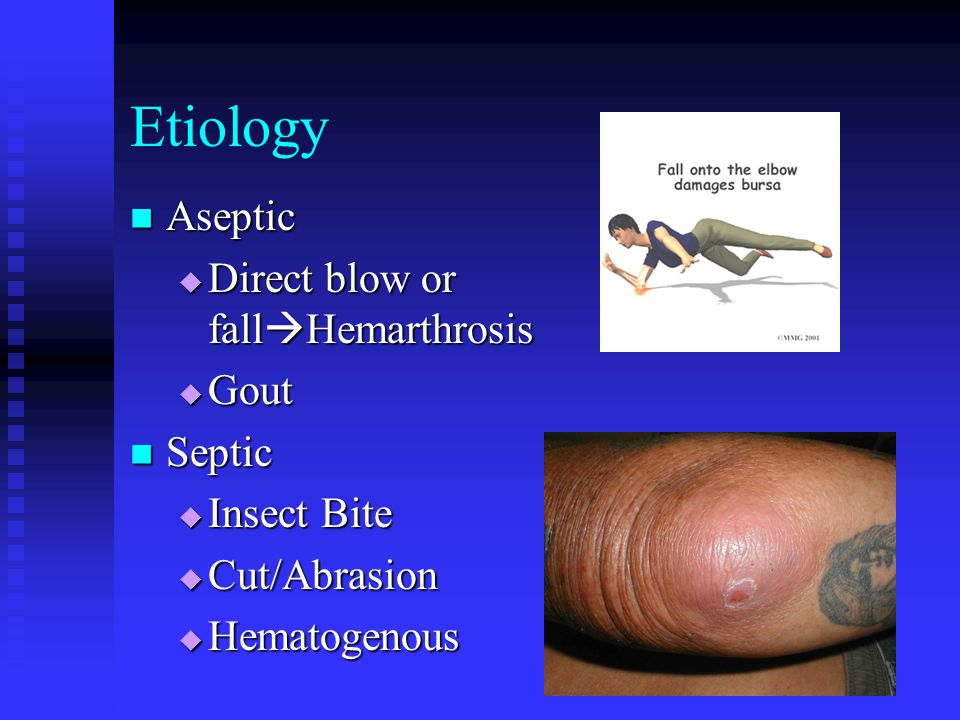 Etiology Aseptic Direct blow or fallHemarthrosis Gout Septic