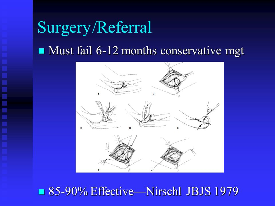 Surgery /Referral Must fail 6-12 months conservative mgt