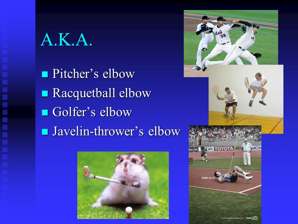 A.K.A. Pitcher's elbow Racquetball elbow Golfer's elbow